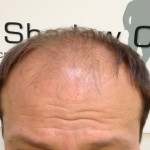 Male_Pattern_Baldness