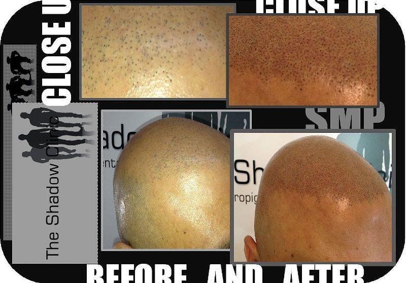 SMP_Density_for_Hair_Transplant